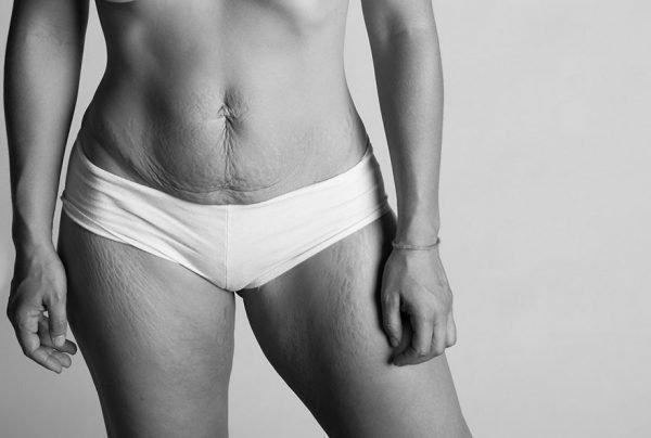 Fotografias lindas e criativas de mulheres depois da gravidez (7)